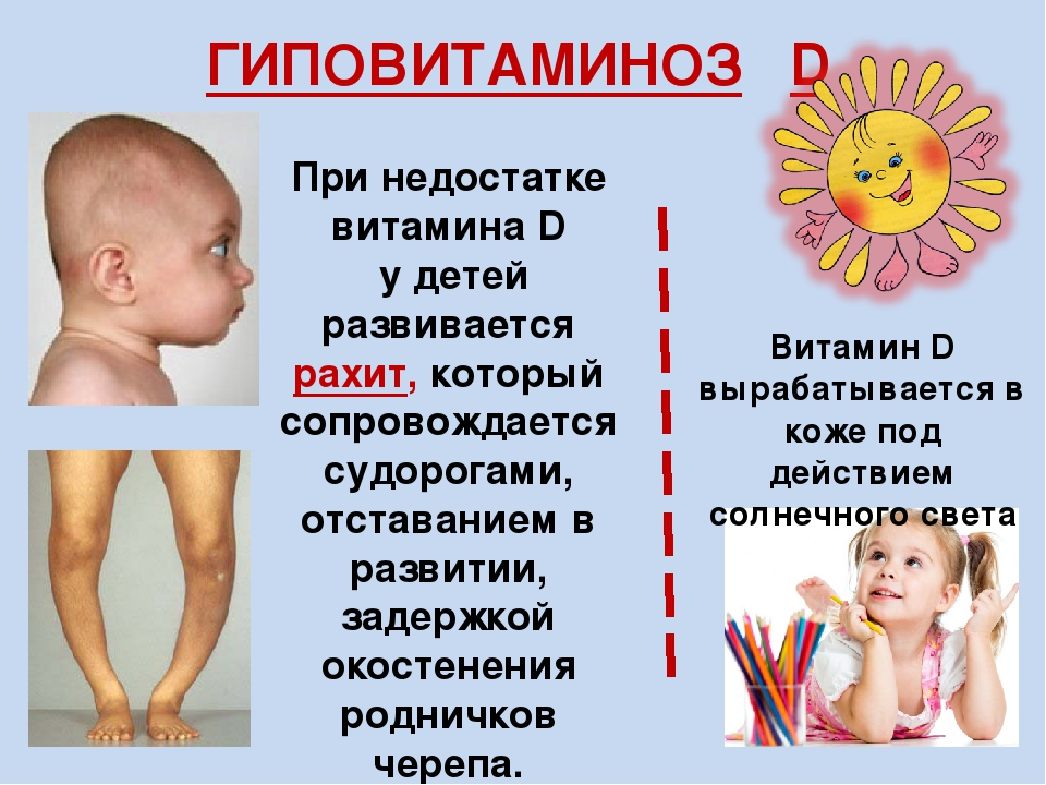 Последствия нехватки витамина Д