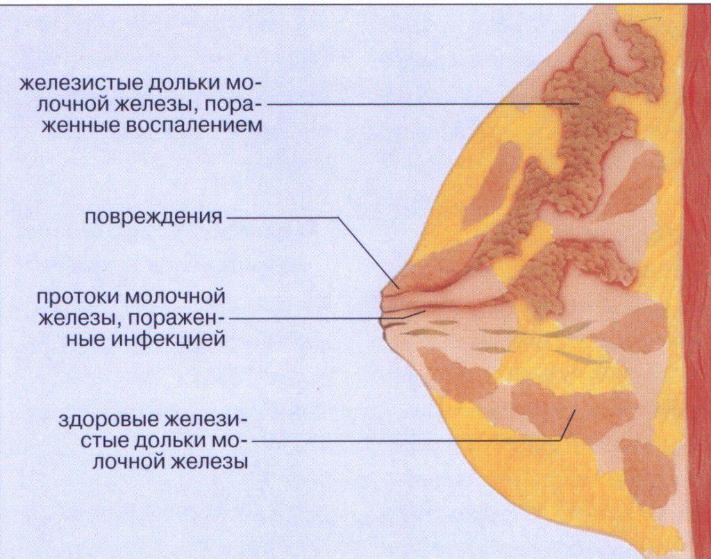 Заболевание Лактостаз