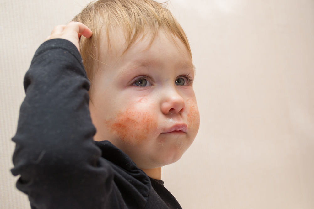 диатез на лице