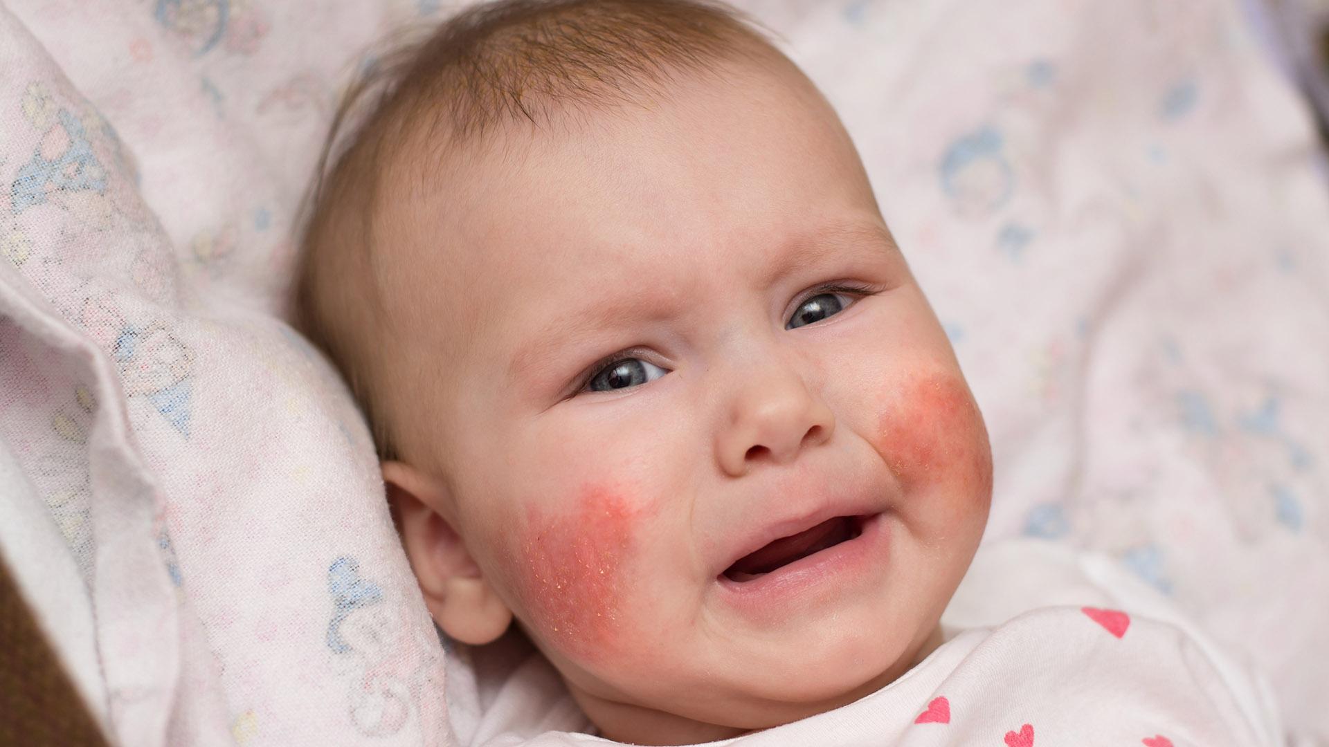 скарлатина у новорожденных